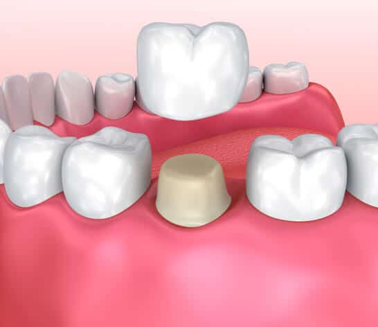 candidate for Porcelain Crowns